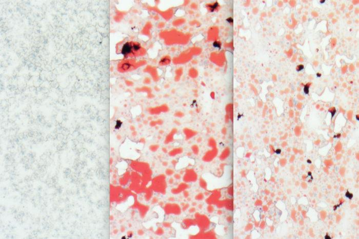 A comparison of the livers of different groups of mice – left is a healthy mouse liver, middle shows the fatty deposits (red) left by a high-fat/cholesterol diet over 12 weeks, and the right image shows that same high-fat diet in mice with high levels of Aloxe3 expression