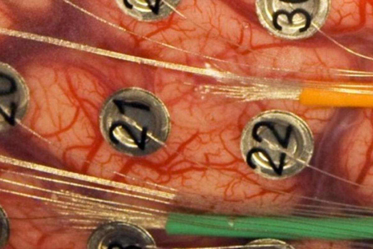 Microwires emerging from the green and orange tubes connect to two arrays of 16 microelectrodes embedded in a small mat of clear, rubbery silicone - the larger, numbered electrodes are part of the patient's original surgery (Photo: University of Utah Department of Neurosurgery)