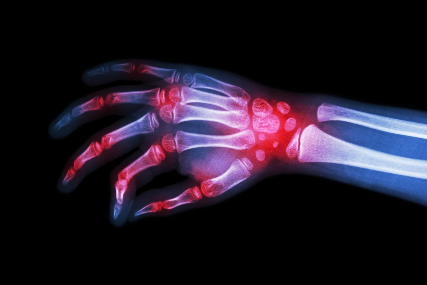 Several in a new class of drugs designed to treat rheumatoid arthritis are inching closer to the market following successful final phase human trial results