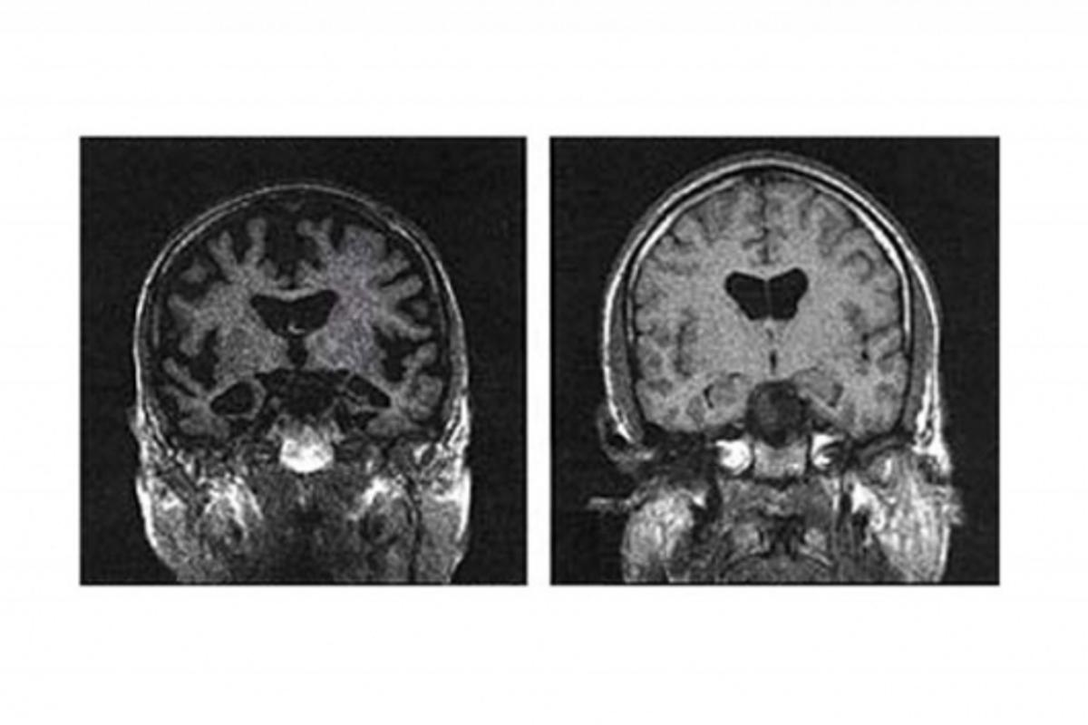 MRI of a brain with A.D. (left) and a normally aged brainImage credit: NASA