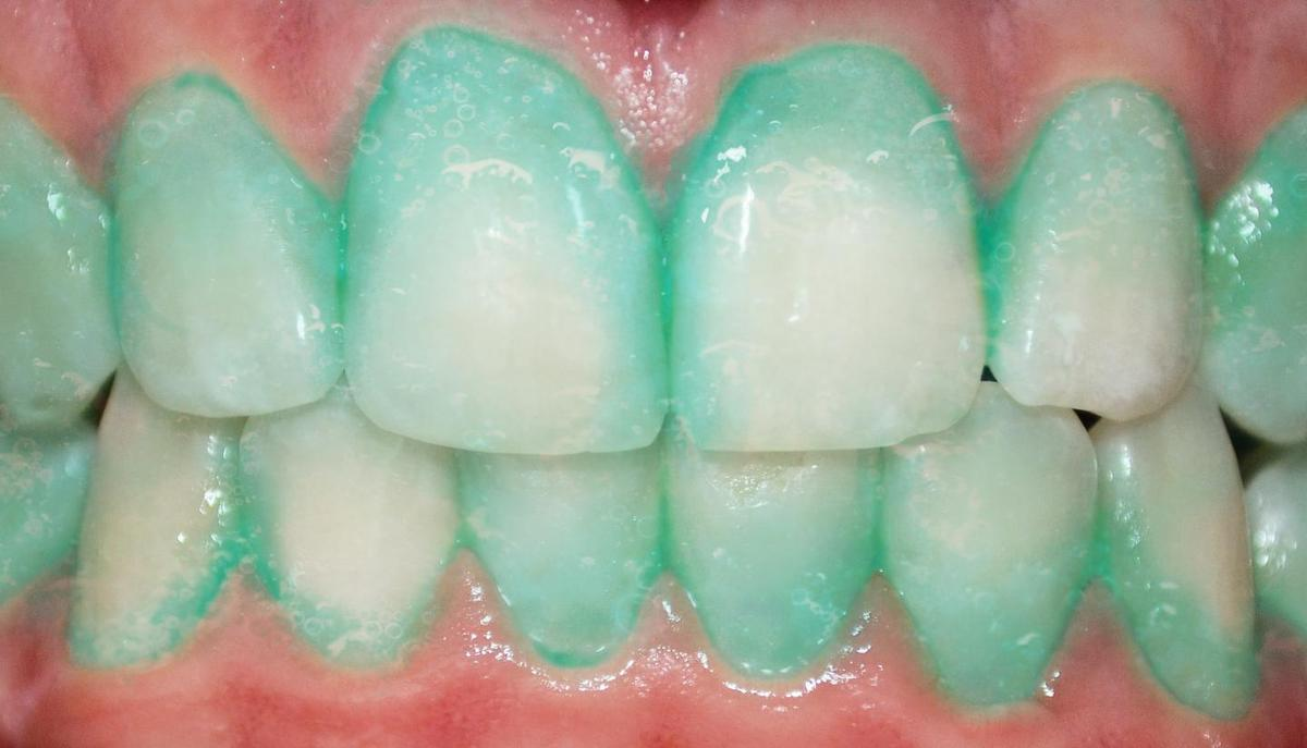 The toothpaste tested in the trial highlights plaque, helping subjects more effectively clean teeth