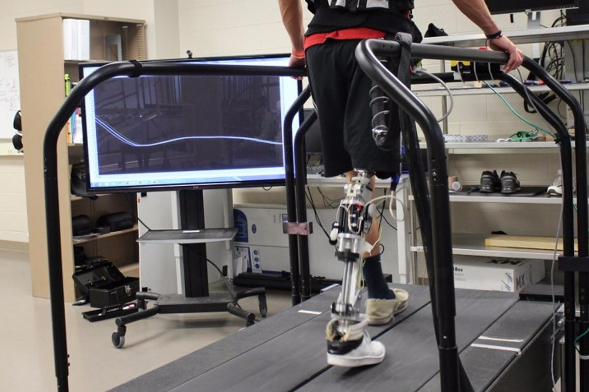 The algorithm automatically adjusts a powered artificial limb as the patient's physical and behavioral condition changes