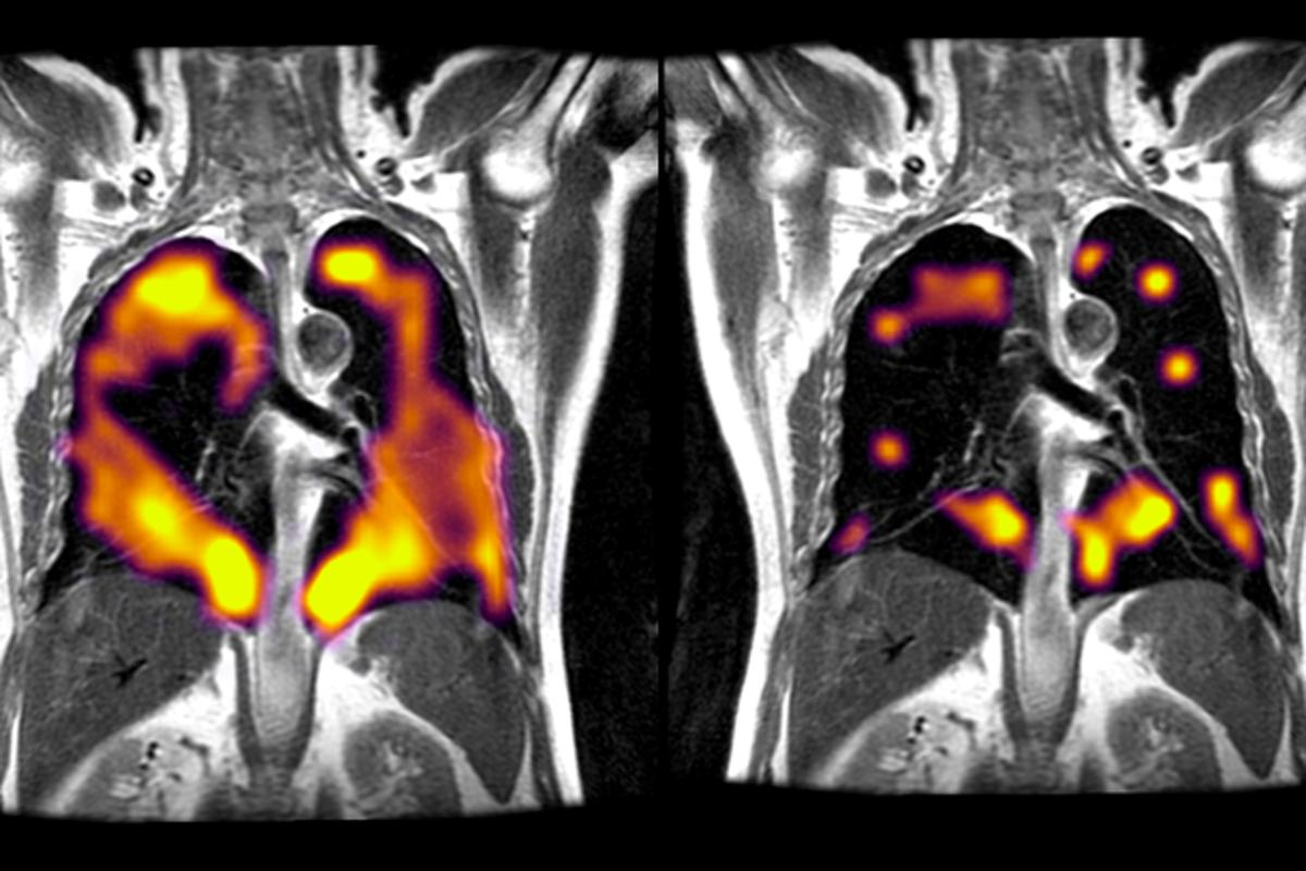 The new scan involves a patient inhaling xenon gas, allowing clinicians to see structure and regional ventilation in the lungs