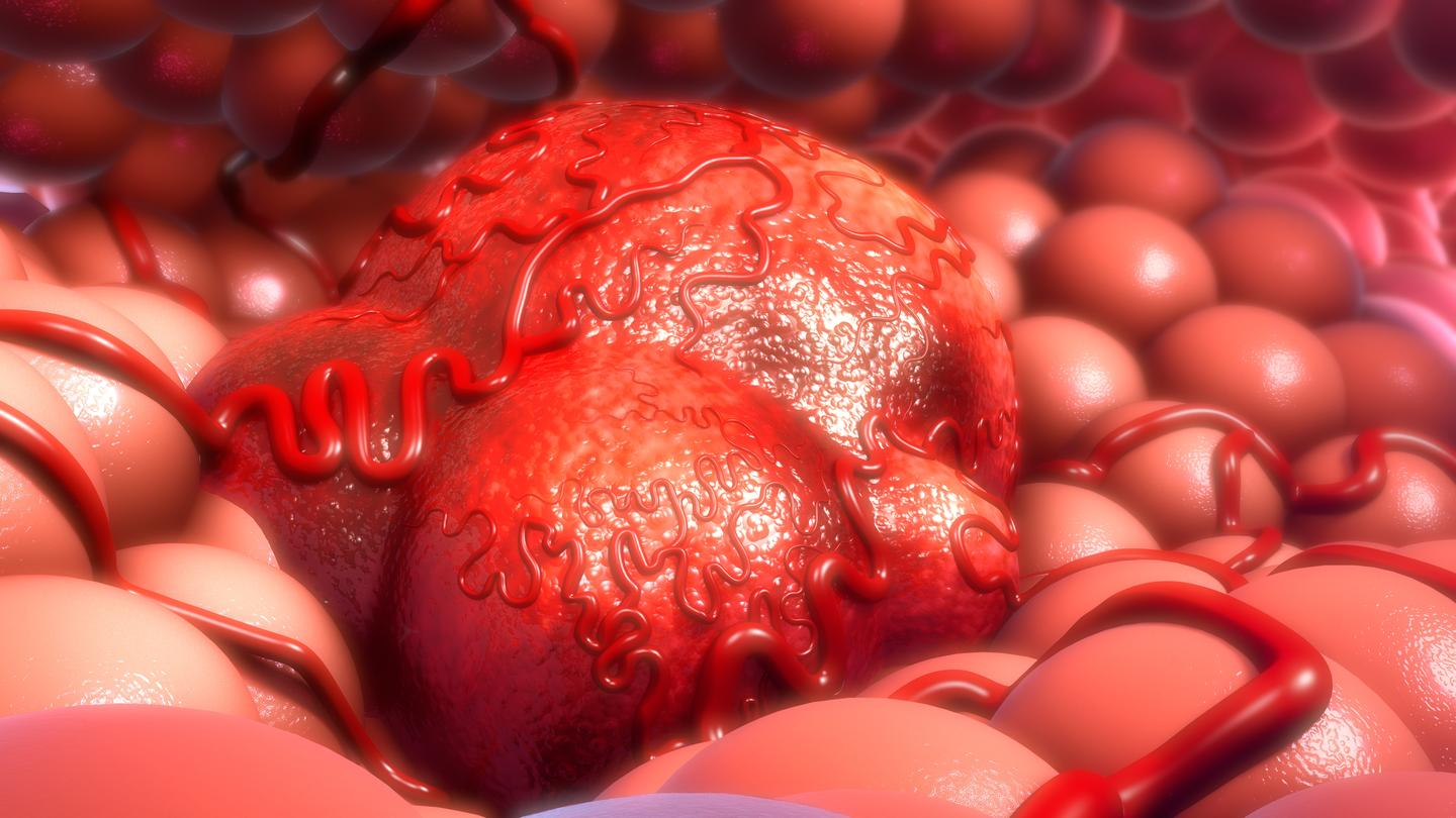 Scientists have discovered a new vulnerability in solid tumors
