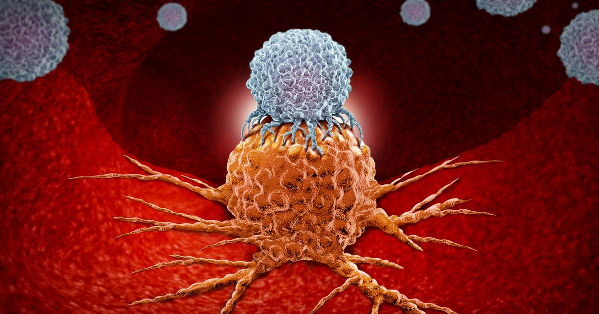 Immunotherapy study shows how to stop cancer hiding from immune cells