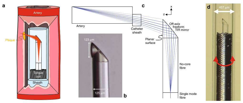 a.) Schematic of the 3D-printed OCT endoscope inside an artery. b.) Microscope image of the 3D-printed off-axis freeform total internal reflection (TIR) mirror on the tip of the no-core fiber that is fusion spliced onto the light-guiding single-mode fiber. c.) Optical design of the system with light exiting the single-mode fiber, expanding in the no-core fiber, being reflected and phase-shaped at the freeform mirror, passing the catheter sheath and focusing into the artery tissue. d.) Photo of the 3D-printed OCT endoscope, which rotates and is pulled back to accomplish full 3D OCT scanning