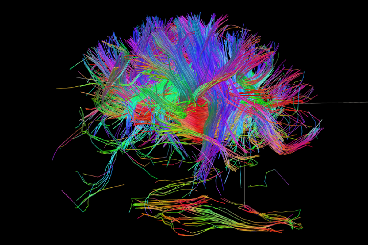 "A ""connectome,"" or map of neural pathways and wires, of a human brain"