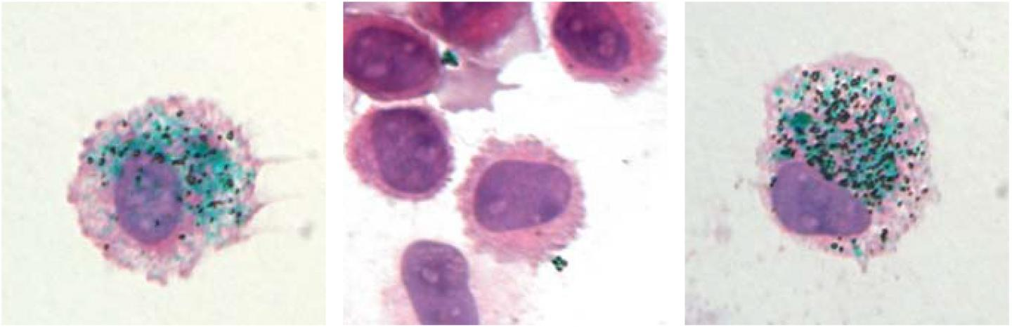 Green tattoo pigment is taken up by dermal macrophages (left). The pigment is released when these cells are killed (center) but, 90 days later, is taken back up into new macrophages that have replaced the old ones (right)
