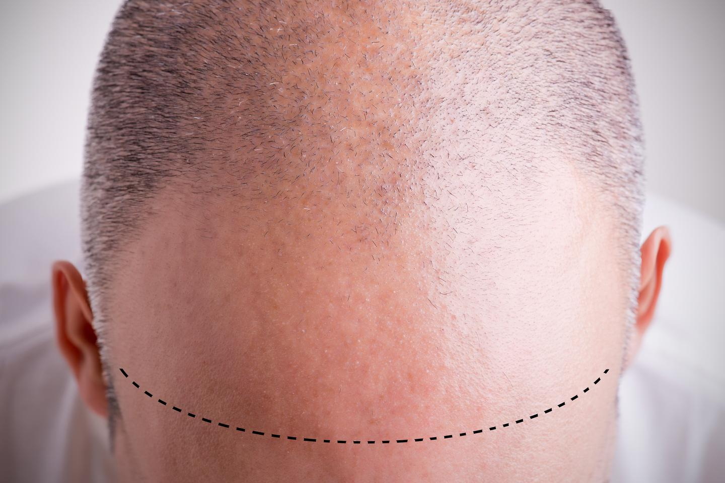 Scientists have uncovered new insights into the machinery behind hair loss in humans