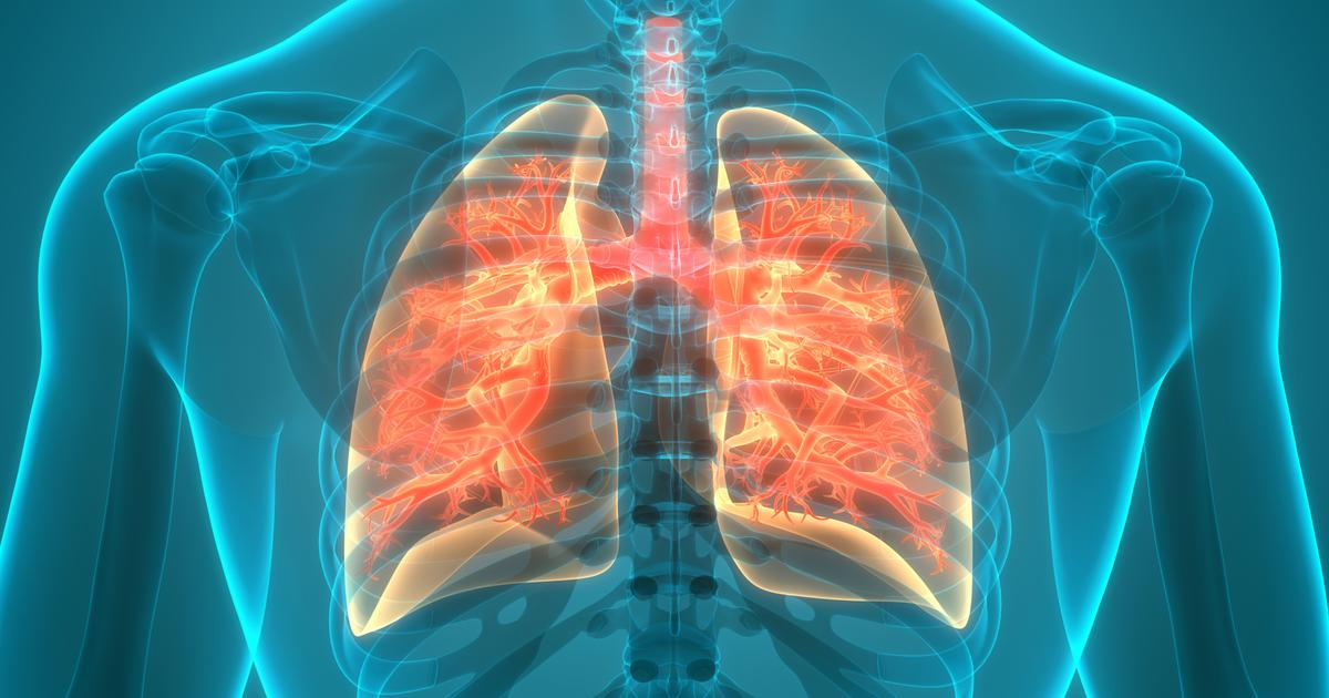 Lung disease associated with gut microbiome alterations