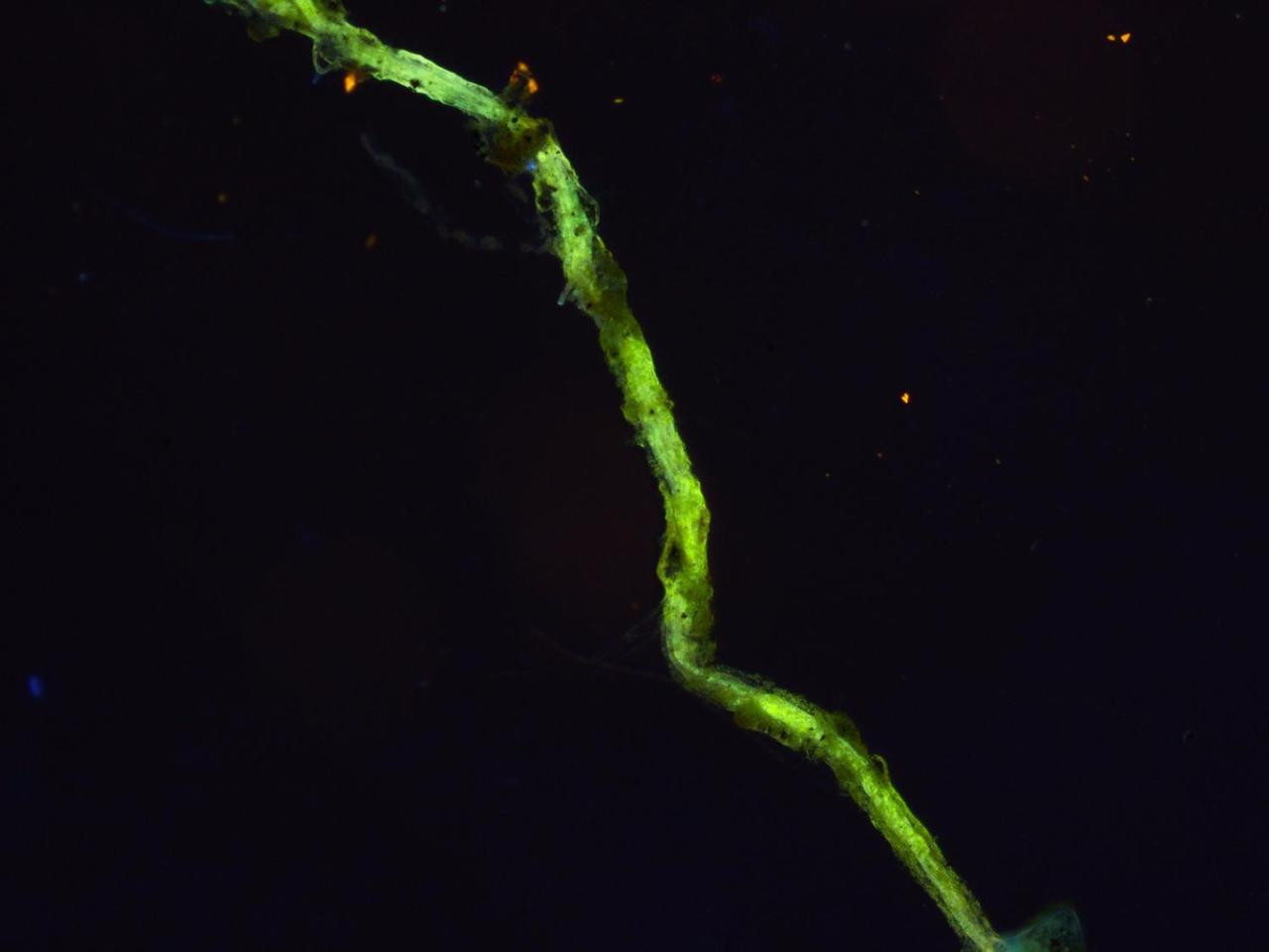 A close-up of a single filament with bacteria cells on its body