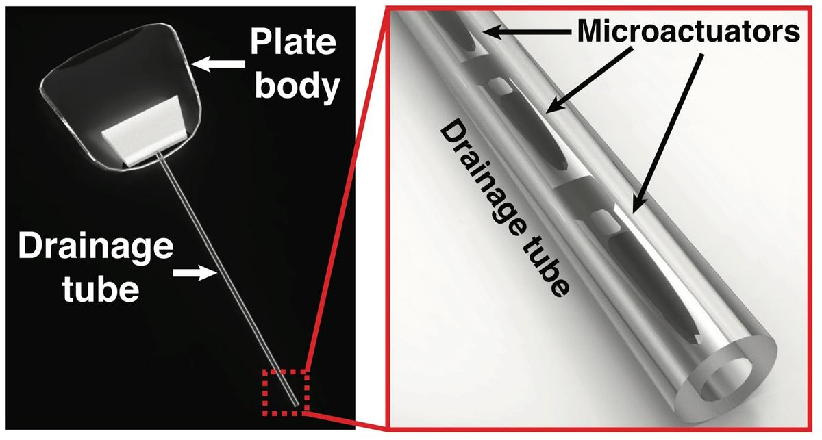 The implant is activatedvia externally-applied magnetic fields
