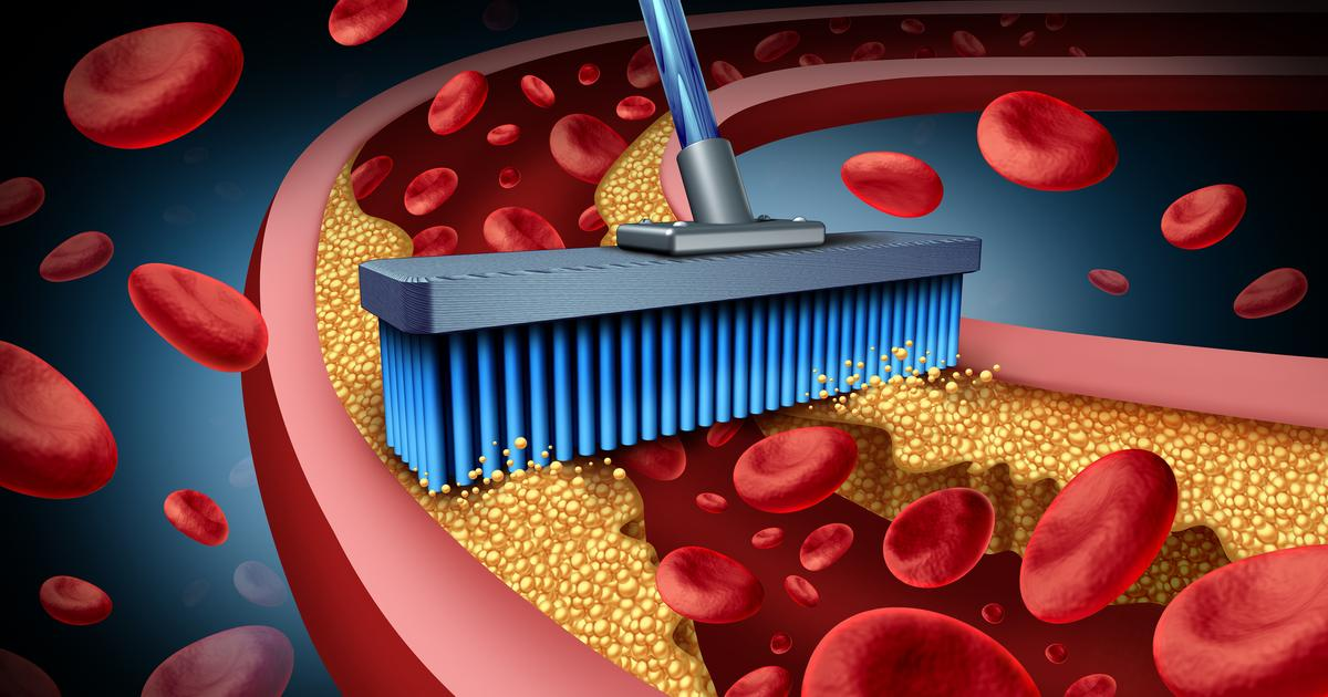 Experimental drug halves cholesterol levels in phase 2 clinical trials