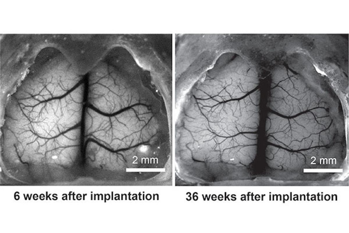 Mouse brainat six weeks and 36 weeks after implantation of the See-Shell