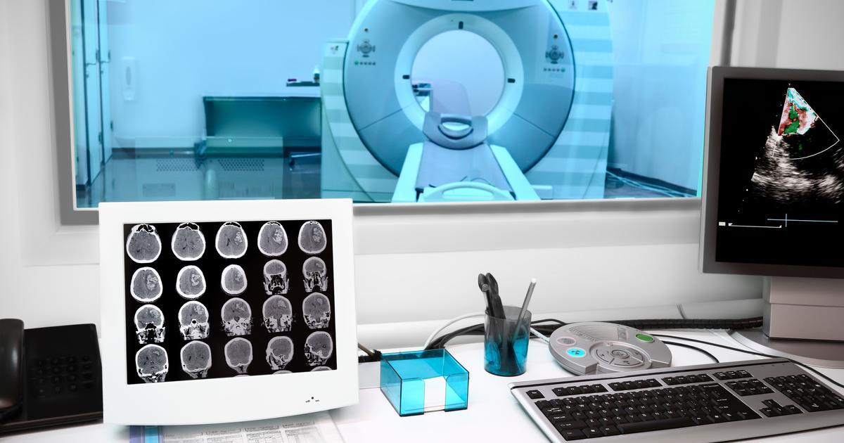 New imaging method reveals lack of key brain protein in schizophrenia