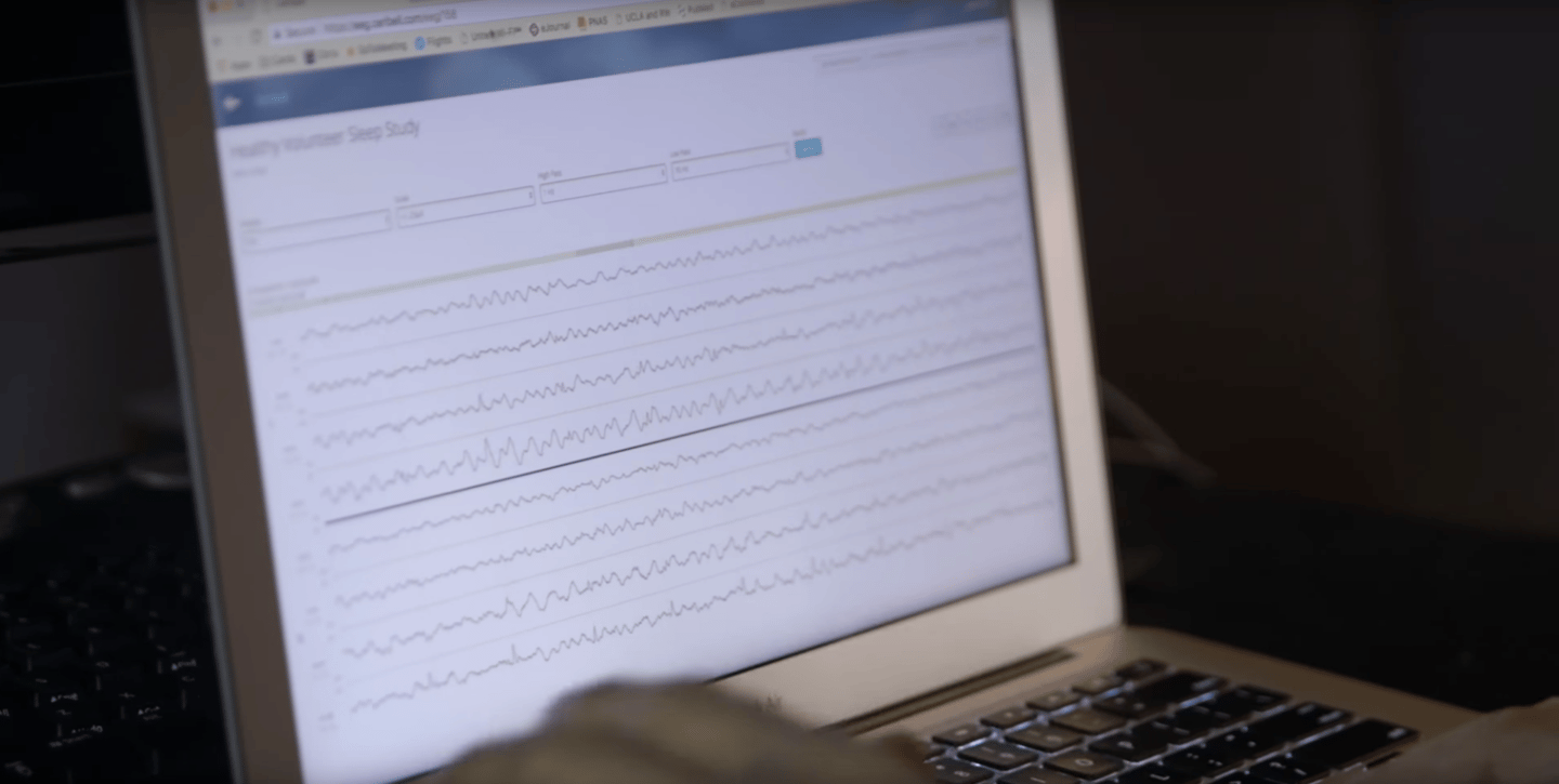 "Stanford scientists have developed a ""brain stethoscope"" that translates brain waves into sound, making the onset of seizures easily identifiable"