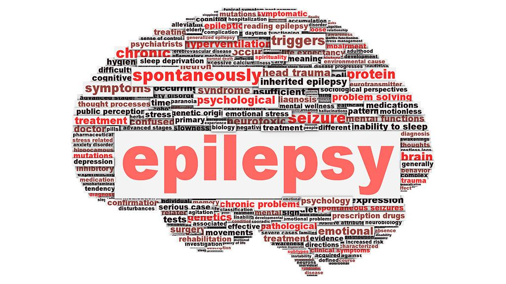 A new brain implant can accurately predict an impending epileptic seizure (Image: Shutterstock)