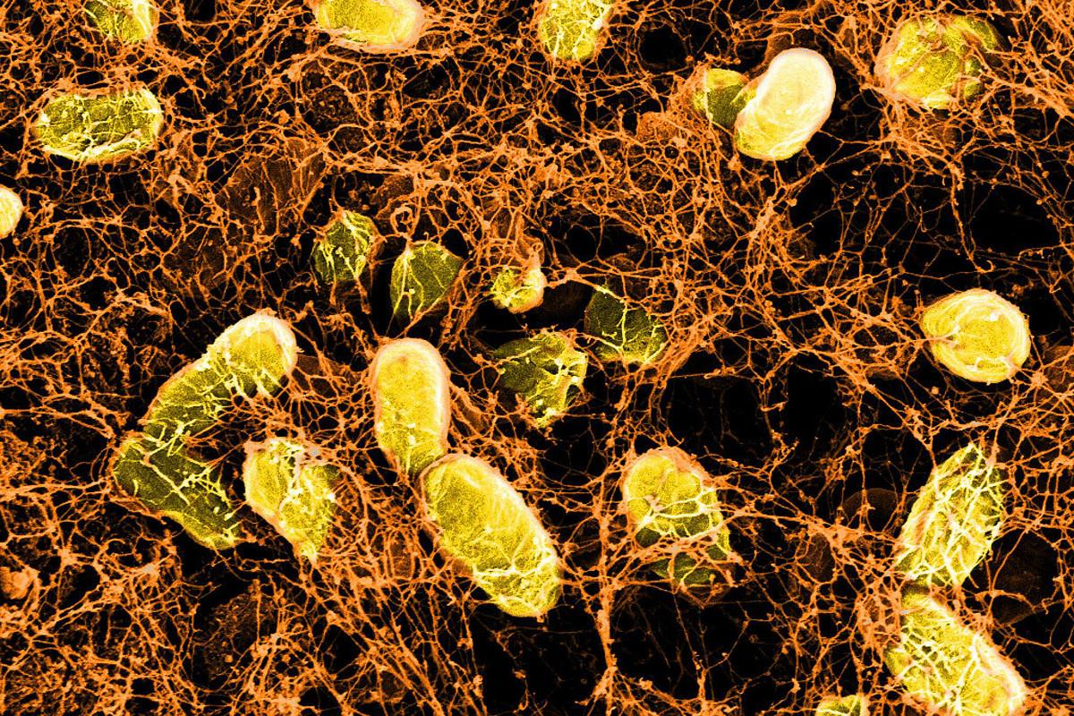 A microscopic image of a new bacterial hydrogel sticking to the wall of the intestines