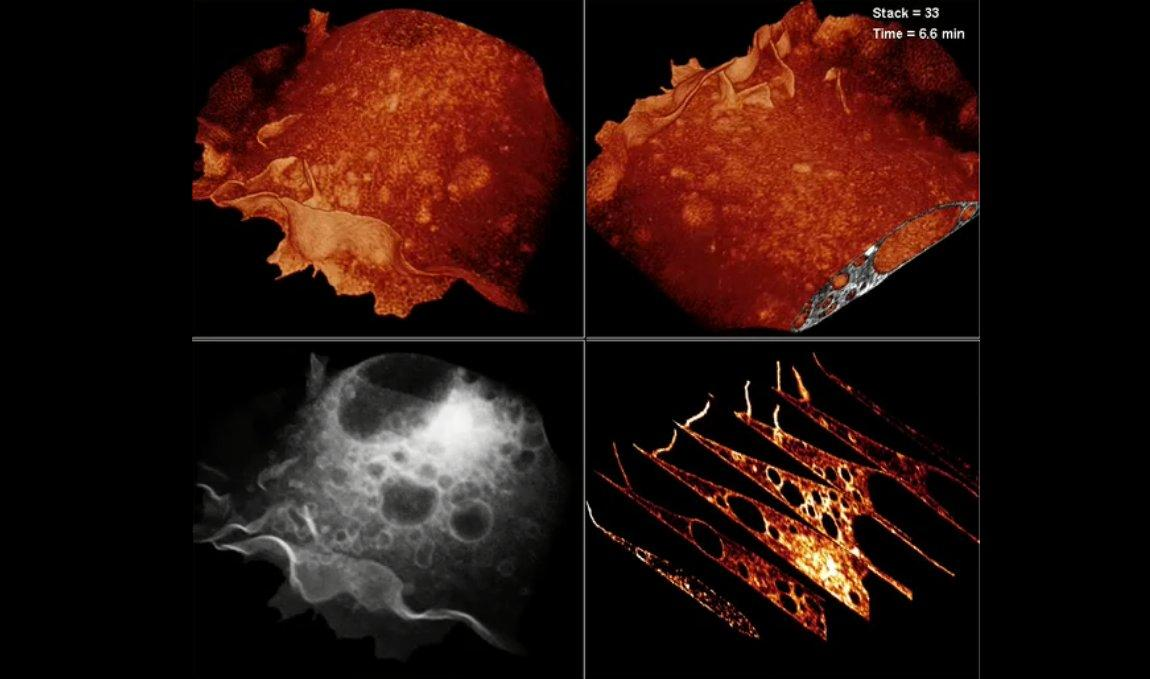 Bessel beam plane illumination microscopy used to create 3D images of vesticles
