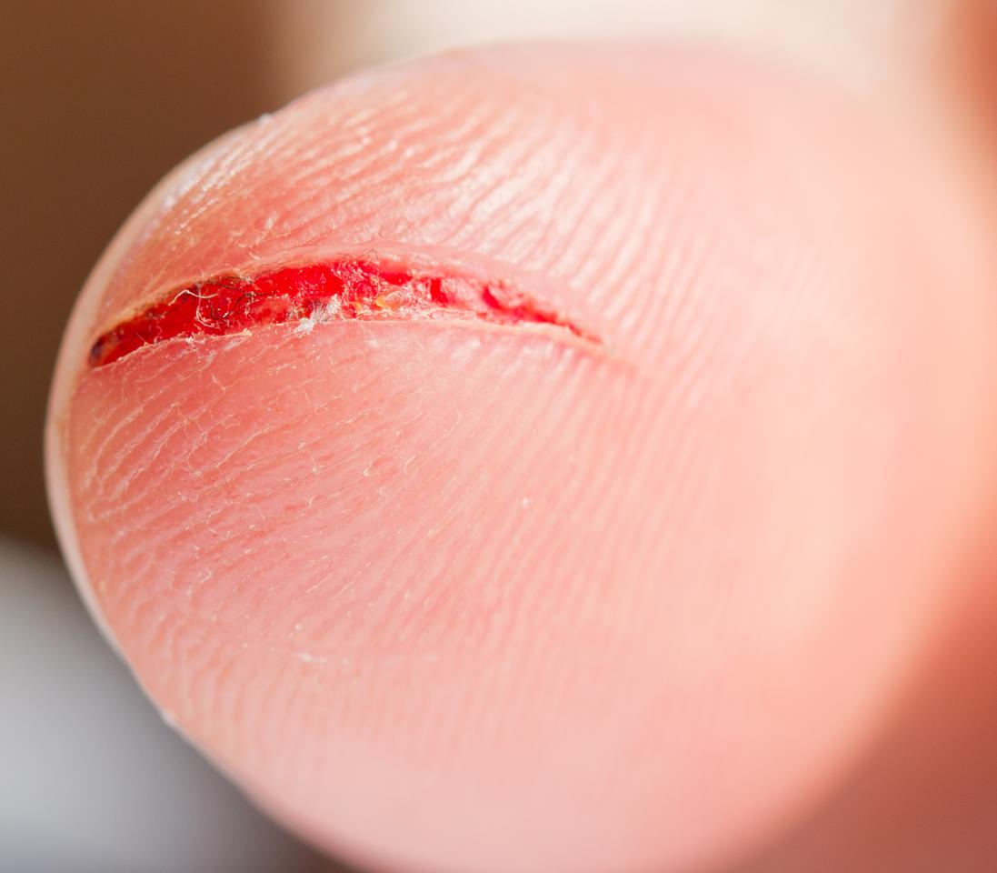 A new plastic demonstrated to the American Chemical Society on Monday not only professes to self-repair when exposed to light, but to change color when damaged in a process akin to the bleeding of human skin (Photo: Shutterstock)
