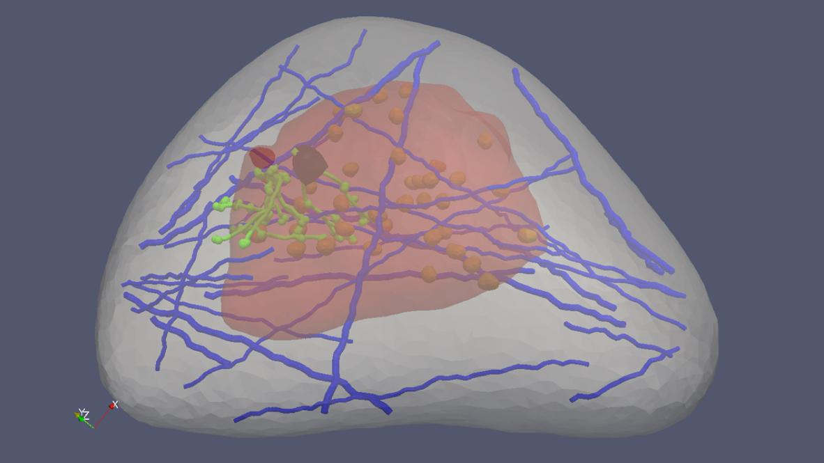 The virtual breast created at MTU could help improve cancer detection using ultrasound elastography