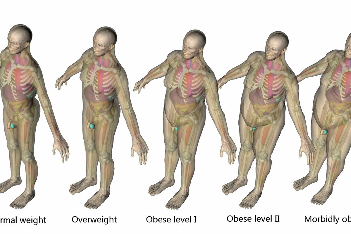 VirtualDose utilizes computer models of different body types to advise physicians on which CT scanning configurations will produce the least amount of radiation