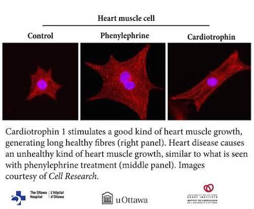 The protein cardiotrophin 1 (CT1) can trigger a healthy kind of heart growth, often seen during exercise or pregnancy