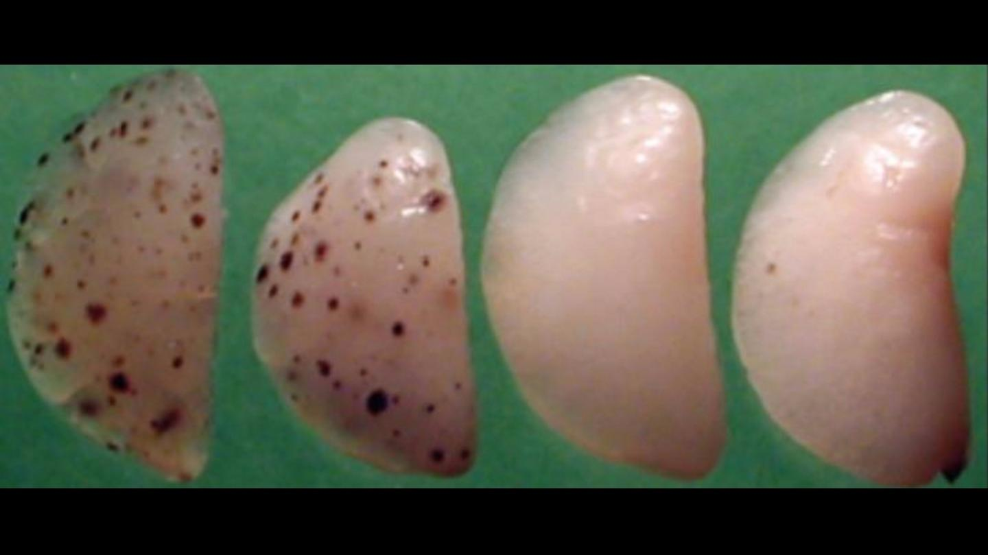 The two untreated mouse lungs can be seen on the left, while those treated with the new intervention can be seen on the right