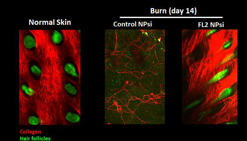 Mice treated with the FL2-inhibiting nanoparticles had burns heal 50 percent faster than those without, and the healing extended to collagen and hair follicle formation (Image: Vera DesMarais/Albert Einstein College of Medicine)