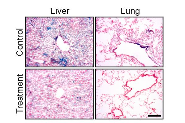 The blue staining shows senescent cells in lung and liver tissue. The amount of the staining is significantly reduced following the drug treatment
