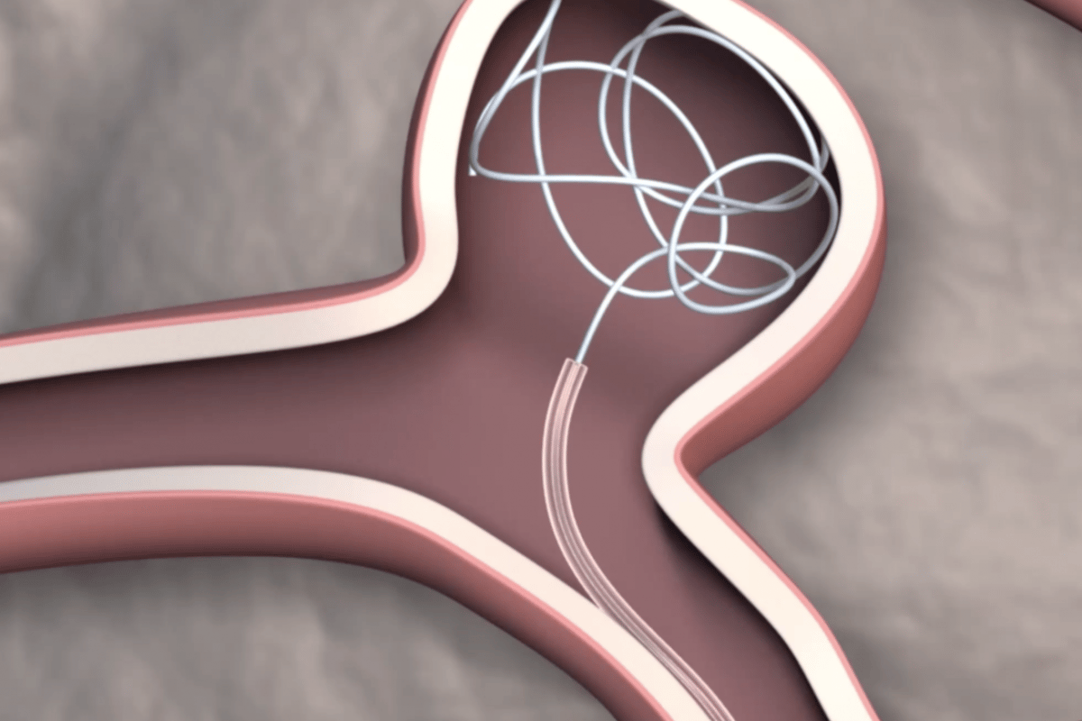 Graphic of a newly developed steerable catheter depositing platinum coils to treat an aneurysm