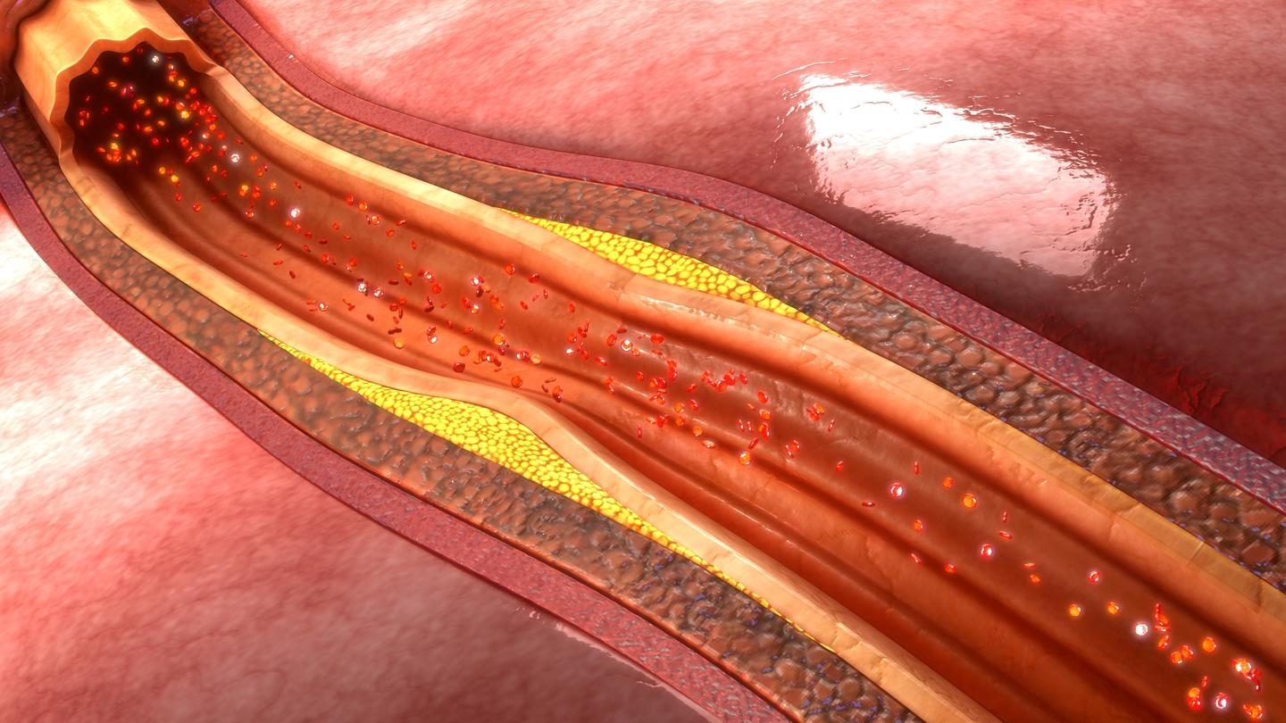 Researchers have developed nanoparticles that can reveal the presence of atherosclerotic plaques before they trigger heart attacks or strokes