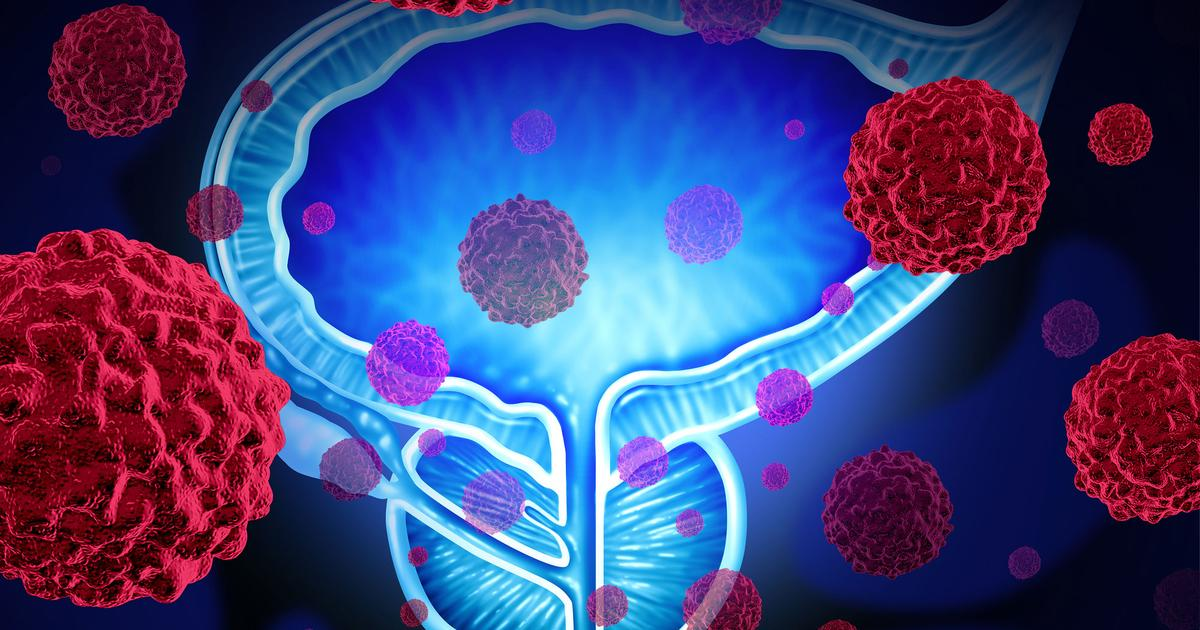 New diagnostic tools aim to catch aggressive prostate cancer early