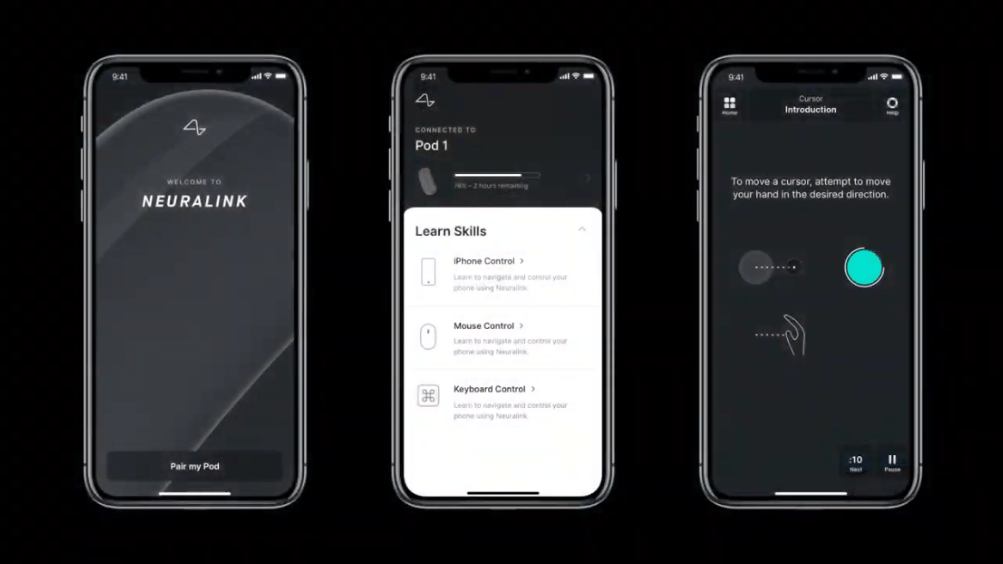 Mockup of a Neuralink iPhone app designed in partnership with MetaLab