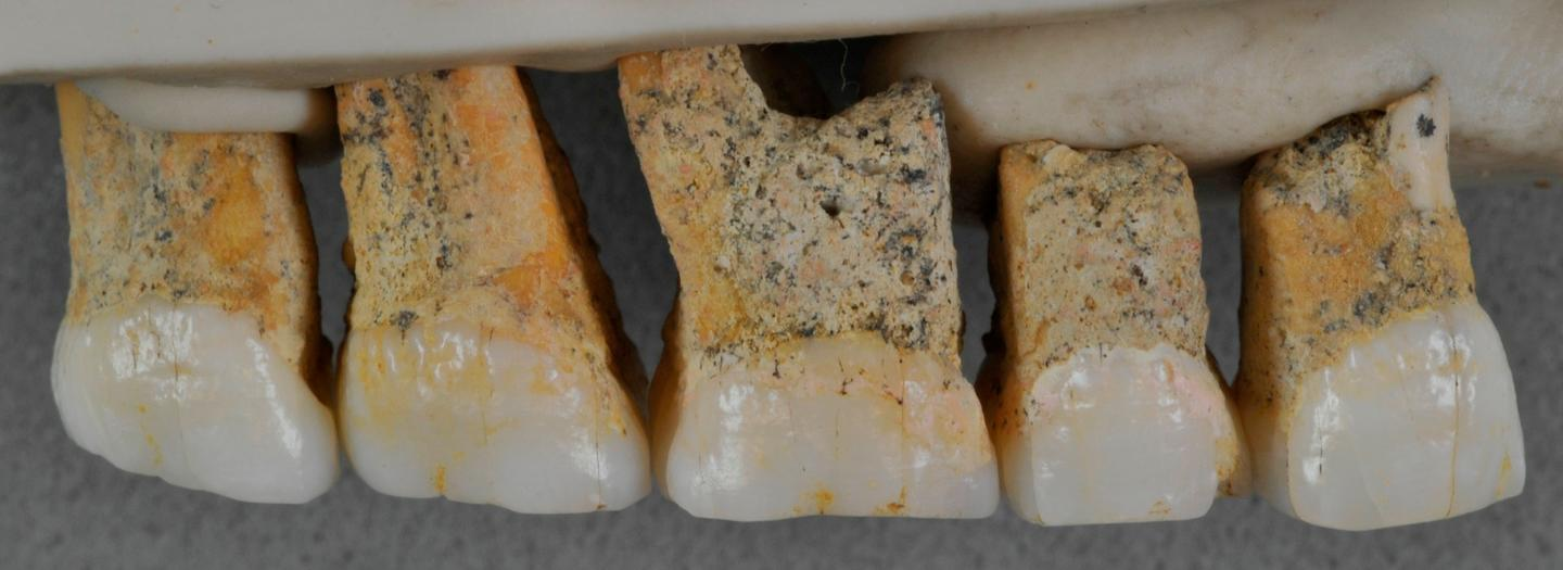 The upper teeth of one Homo luzonensis individual
