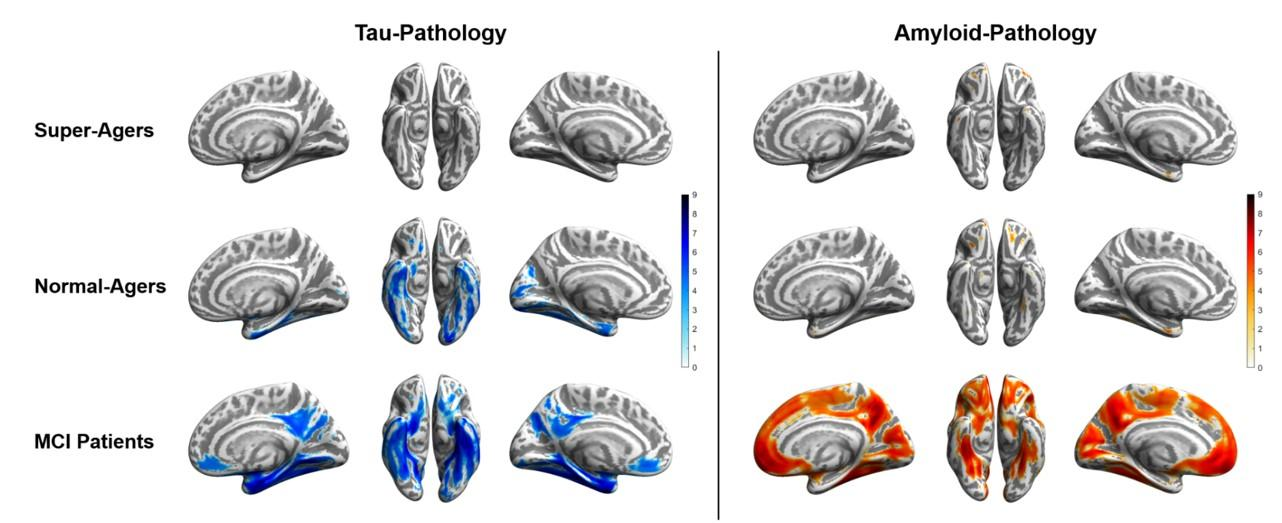 The SNMMI Image of the Year. Tau (blue) and amyloid (orange) distribution patterns for super-agers, normal-agers and MCI patients