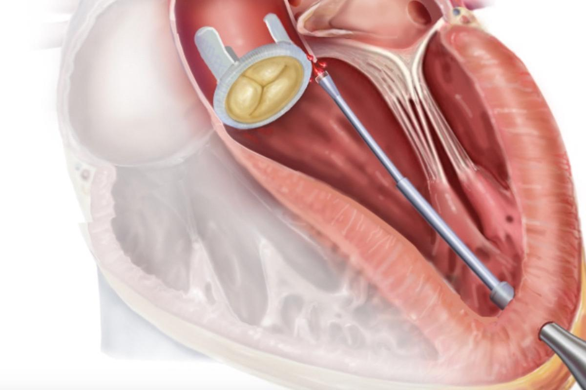 In a procedure known as a paravalvular aortic leak closure, the catheter is used to help plug a leak in an artificial heart valve