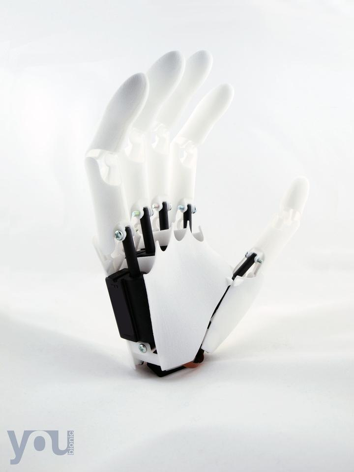Italian start-up Youbionic has created a functional, myoelectric bionic hand using 3D printing and Arduino components