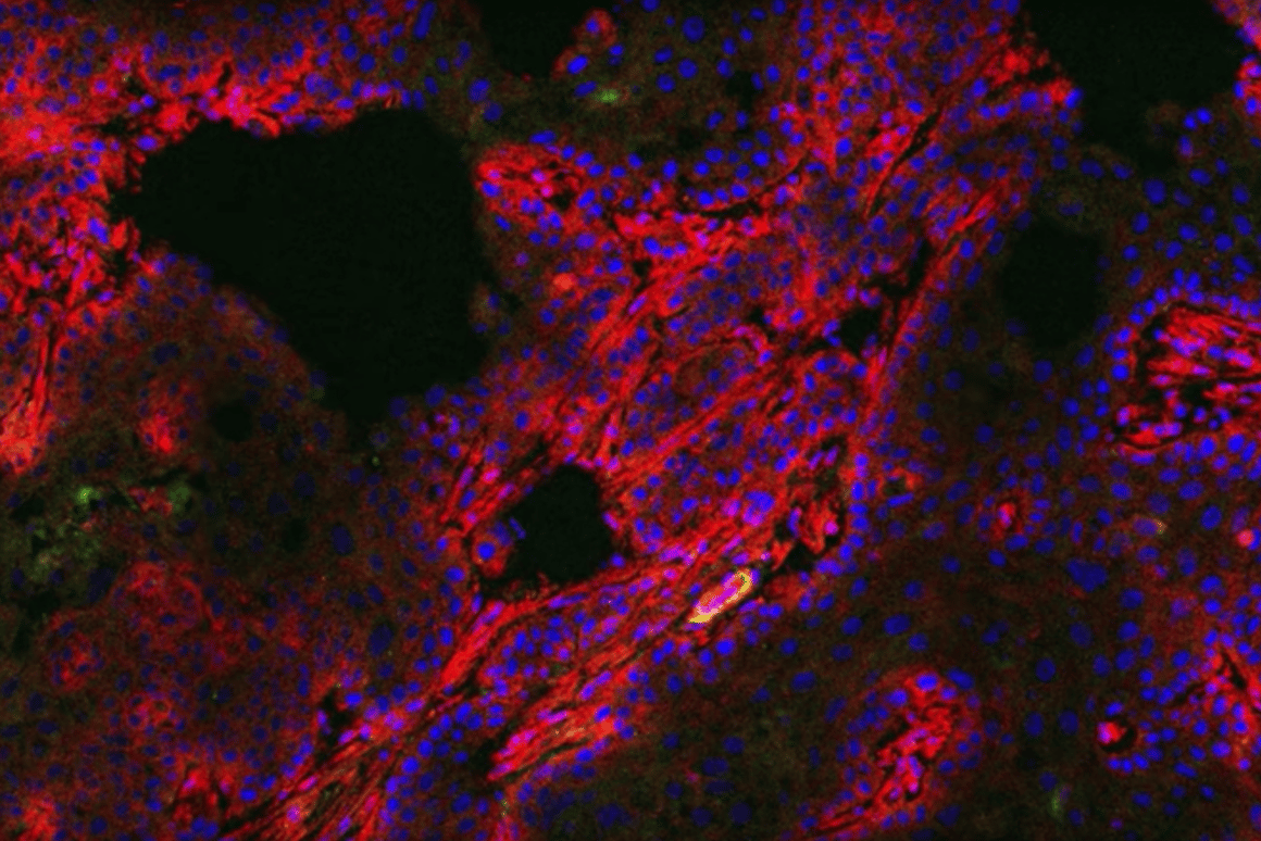 Researchers at University of Michigan have developed a pill that can help in the diagnosis of breast cancer by making tumors glow under infrared light