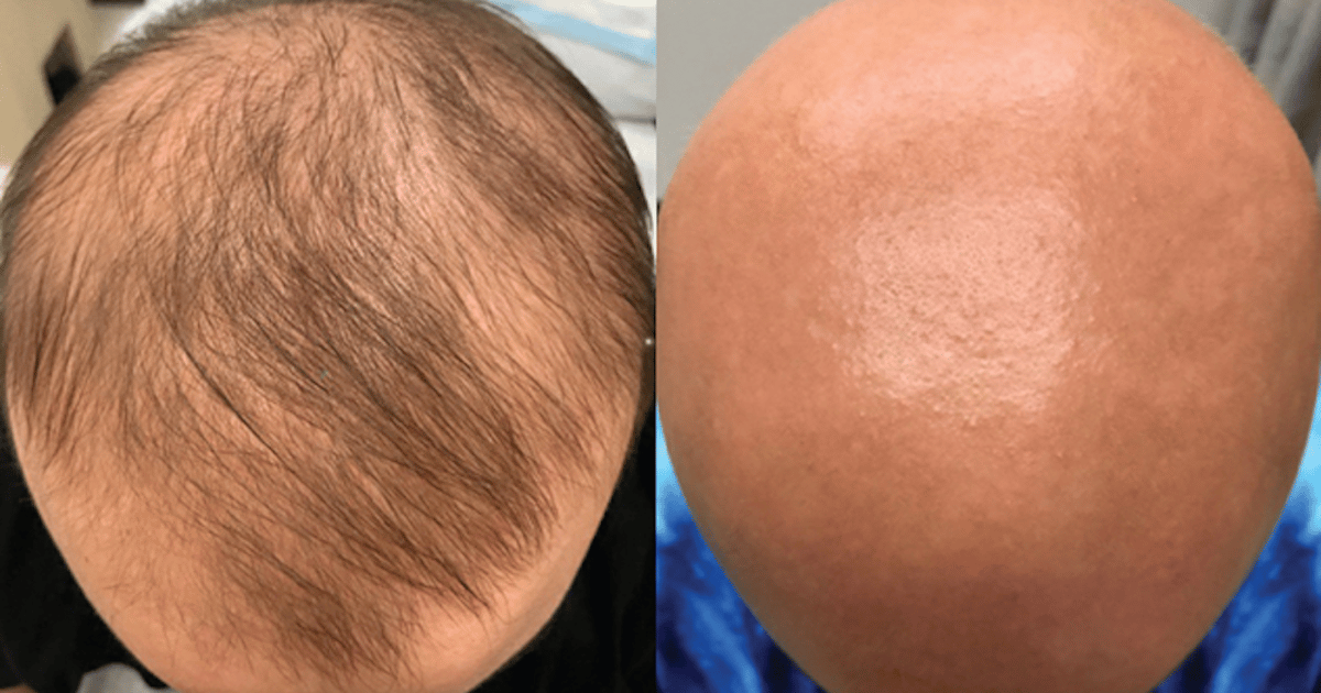 New eczema drug unexpectedly restores hair in bald alopecia patient