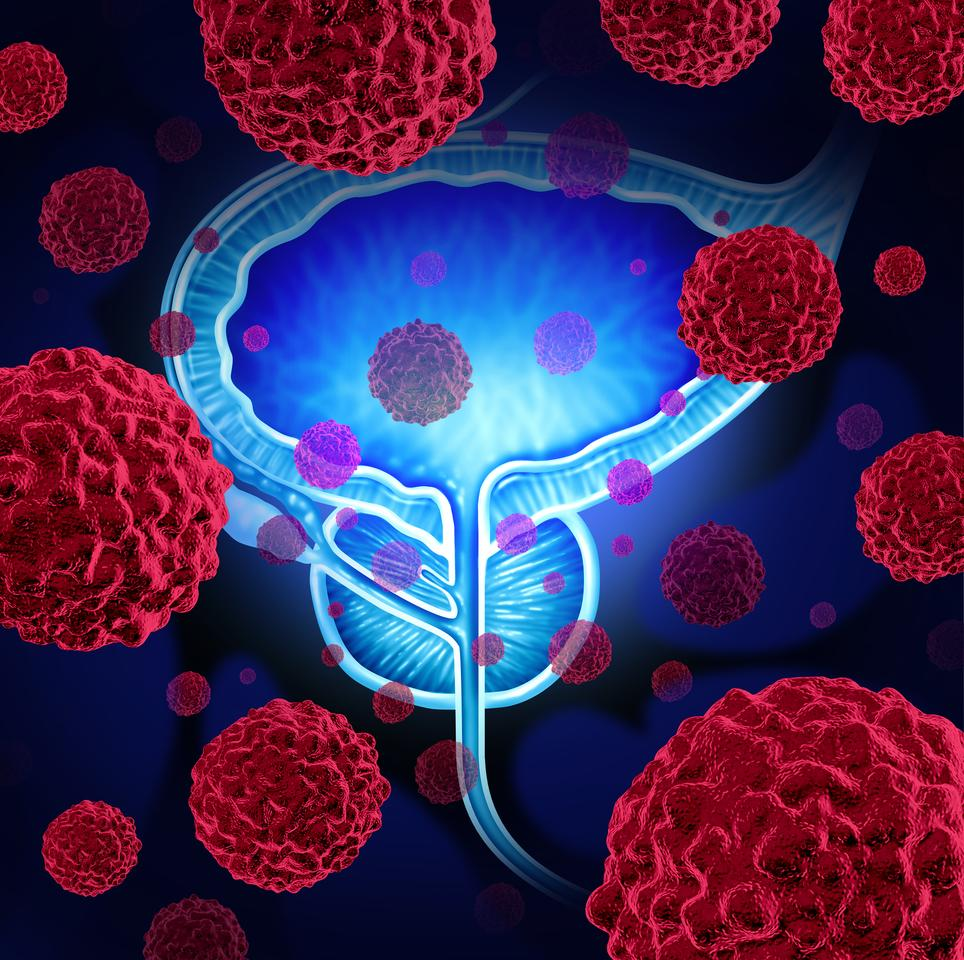 The Odoreader screening method was found to be 90 percent accurate at detecting prostate cancer, which is significantly better than existing testing techniques
