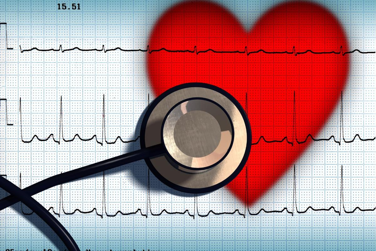 Astudyfollowing more than 250,000people hasconfirmed an association between atrial fibrillation and the onset of dementia