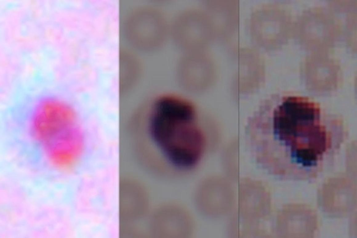 Image of a blood smear from a smartphone camera (left), following enhancement by the algorithm (center), and taken by a lab microscope (right)