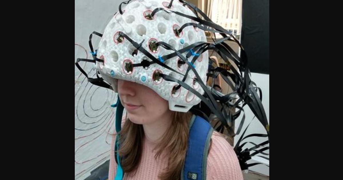 New-and-improved MEG helmet scans the entire brain