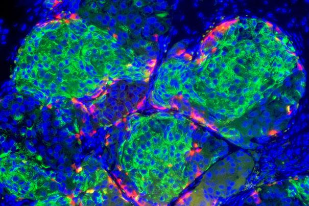 Human stem cell-derived beta cells formed islet-like clusters and made insulin when transplanted in mice, curing them of diabetes (Image: Doug Melton)