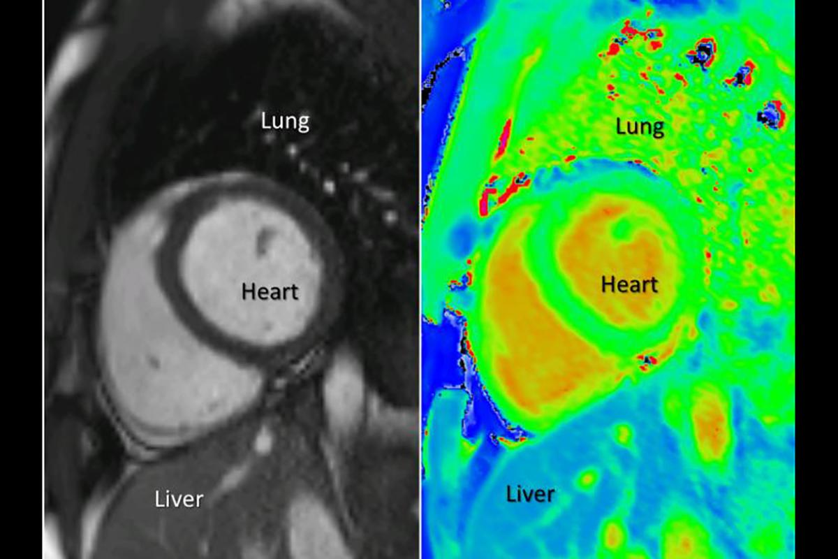 The T1 mapping technique (right) provides easier-to-interpret imagery than the existing MRI method (left)