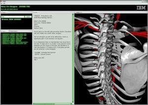 IBM medical visualization software that lets doctors search specific parts of the body