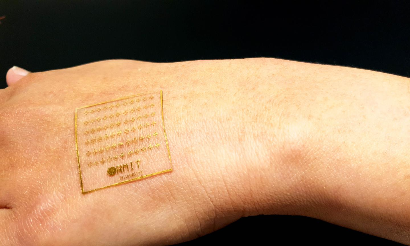 A prototype of the electronic skin developed at RMIT