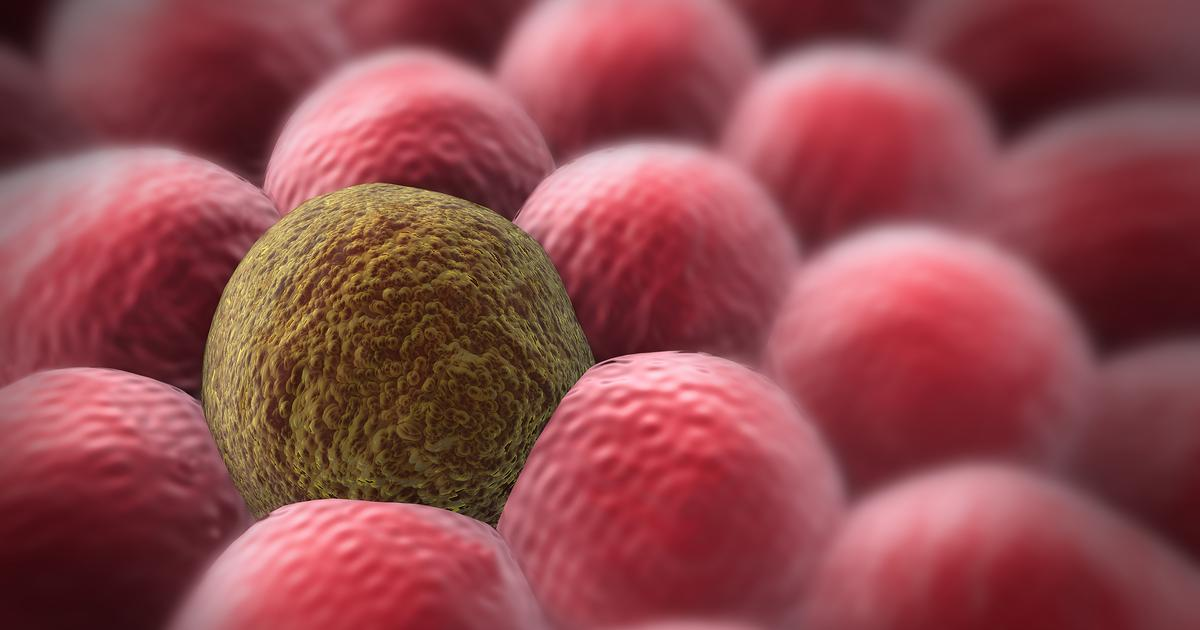 Certain ultrasound frequency may selectively destroy cancer cells