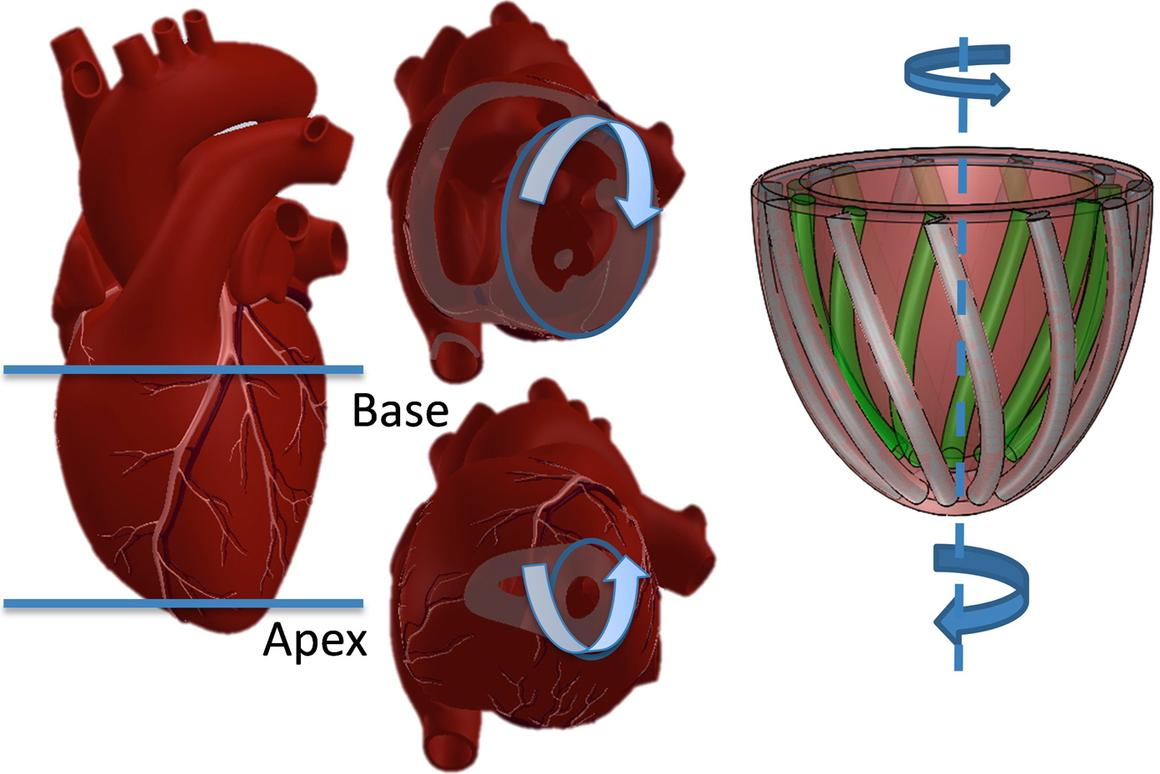 Illustrations of a human heart doing the left ventricular twist (left), and the Harvard model imitating it (Image: Harvard's Wyss Institute and SEAS)